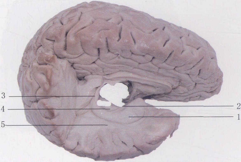 (图) 海马-临床应用人体结构-医学